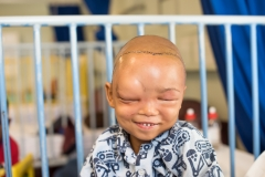 2018; Little Lesray - 6 year old boy in Tygerberghospital with BigShoe after his surgery on his Tessier cleft with Bigshoe